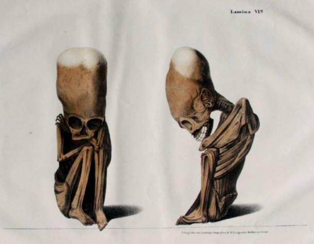 Lithograph-elongated-skulls